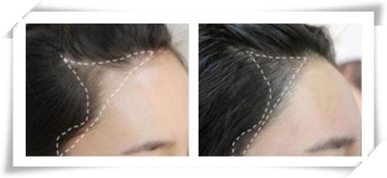 scalp micropigmentation singapore & Hairline Embroidery Tattoo